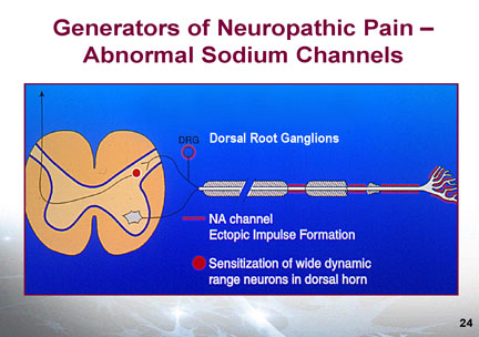 Dosage Of Neurontin For Peripheral Neuropathy